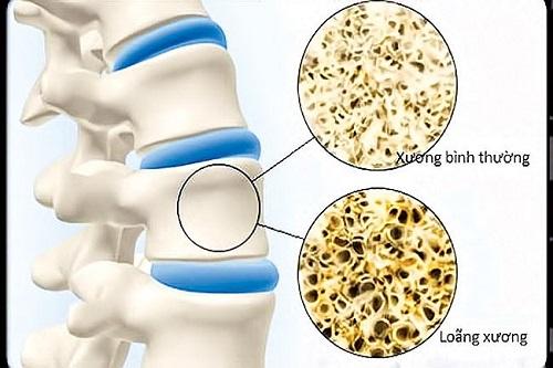 Loãng xương làm mất đi cấu trúc bền vững cho xương
