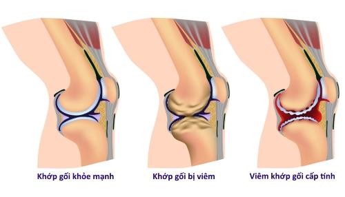 Viêm khớp gây ra đau 1 bên đầu gối