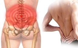 Đau xương sống vùng thắt lưng liên quan đến bệnh lý gì?